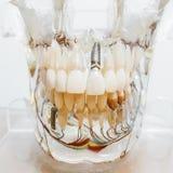 Modelo de la boca de la vista delantera fotografía de archivo