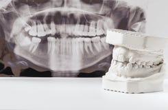 Modelo de lanzamiento dental del yeso de mandíbulas humanos con la radiografía dental panorámica Dientes torcidos y mordedura dis imagen de archivo libre de regalías