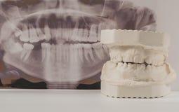 Modelo de lanzamiento dental del yeso de mandíbulas humanos con la radiografía dental panorámica Dientes torcidos y mordedura dis fotografía de archivo libre de regalías