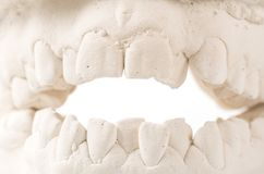 Modelo de lanzamiento dental del yeso de mandíbulas humanos Dientes torcidos y mordedura distal Los tiros fueron hechos antes del imágenes de archivo libres de regalías