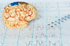 Modelo del cerebro humano y ondas cerebrales subdurales de la grabación del electrodo en el fondo de las ondas cerebrales fotografía de archivo