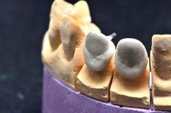 Modelo del implante de los dientes Fotografía de archivo