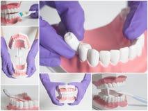 Modelo del ser humano de los dientes Concepto del cuidado dental collage Imagen de archivo