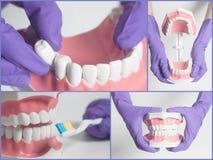 Modelo del ser humano de los dientes Concepto del cuidado dental collage Fotos de archivo libres de regalías
