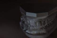 Modelo del yeso del mandíbula humano en un fondo blanco Fotografía de archivo