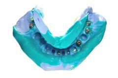 Modelo dental de la cera con la inserción metálica Foto de archivo