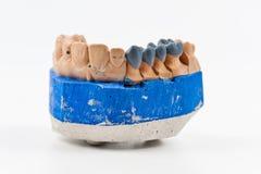 Modelo dental del injerto de la cera Fotografía de archivo