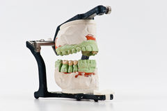 Modelo dental del injerto de la cera Foto de archivo libre de regalías