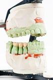 Modelo dental del injerto de la cera Fotografía de archivo libre de regalías