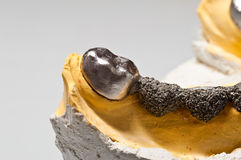 Modelo dental del injerto de la corona Foto de archivo libre de regalías