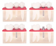 Modelo dental do implante Foto de Stock Royalty Free