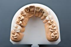 Modelo dental do implante da cera imagens de stock