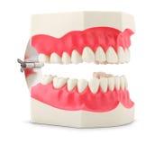 Modelo dental dos dentes Foto de Stock Royalty Free