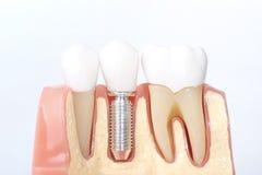 Modelo dental genérico de los dientes foto de archivo