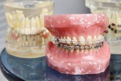 Modelo dental ortodôntico dos dentes humanos com implantes, cintas dentais imagem de stock