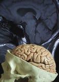 Modelo do cérebro e imagem de MRI foto de stock royalty free