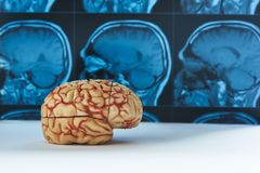 Modelo do cérebro humano e fundo de MRI imagem de stock royalty free