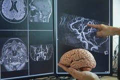 Modelo do cérebro na mão do doutor e na imagem de MRI foto de stock