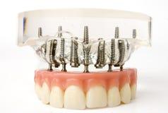 Modelo dos implantes Foto de Stock