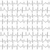 Modelo inconsútil de la carta de los cardiogramas del ekg Imágenes de archivo libres de regalías