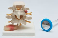 Modelo lumbar herniado del disco y un martillo reflejo en el backgro blanco imagen de archivo libre de regalías