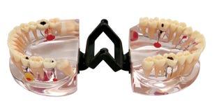 Modelo ortodóntico de los dientes Fotografía de archivo libre de regalías