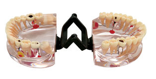 Modelo ortodôntico dos dentes Fotografia de Stock Royalty Free