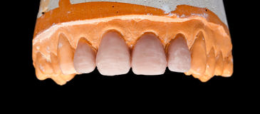 Modelo superior del yeso de la dentadura Fotografía de archivo