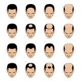 Modelos y etapas de la pérdida de Hairl para los hombres Imagenes de archivo