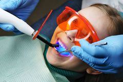 Filling of milk teeth. Dental clinic. Modern caries treatment in children`s dentistry. Dentist puts seal to little girl on her baby teeth with photopolymer stock images