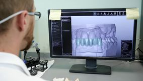 Modern dentistry, Orthodontist makes 3D-model of jaw on computer at job. Close-up stock footage