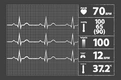 Modern Electrocardiogram Monitor Stock Photo
