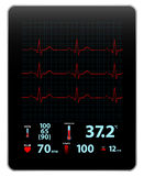 Modern Electrocardiogram Monitor Device Display Stock Photo