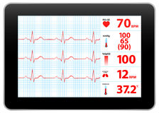 Modern Electrocardiogram Monitor Device Display Royalty Free Stock Images