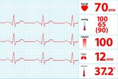 Modern Electrocardiogram Monitor Display stock illustration