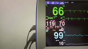 Modern medical monitor with ECG in the clinic. Medical, equipment, technology Royalty Free Stock Photos