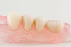 Modern nylon removable dentures Stock Photos