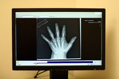 Modern x-ray display of human hand. A human hand is displayed on a computer monitor in an orthopedic surgeon's office stock image