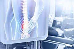 Moderne medizinische Diagnose des Dorns lizenzfreies stockbild