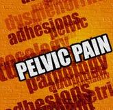 Modernt medicinbegrepp: Bäcken- smärta stock illustrationer