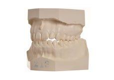 Modèle dentaire des dents humaines sur le blanc Photos libres de droits