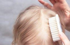 Moeder die seborrheic korst op babys hoofd kammen, close-up, Seborrhoeic-dermatitis, ontstekings stock fotografie