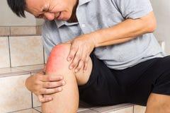 Mognad man som lider den smärtsamma knäleden som placeras på moment Arkivfoton