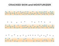 Moisturizer lose . aging skin  Royalty Free Stock Image