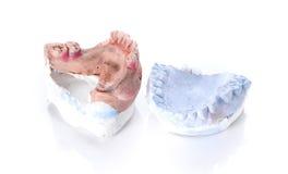 Molde da dentadura, dente quebrado no fundo branco Imagens de Stock