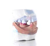 Molde da dentadura, dente quebrado no fundo branco Fotografia de Stock Royalty Free