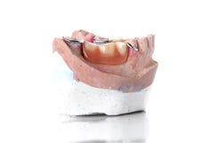 Molde da dentadura, dentes falsos no fundo branco Foto de Stock Royalty Free
