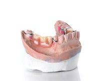 Molde da dentadura, dentes falsos no fundo branco Fotos de Stock