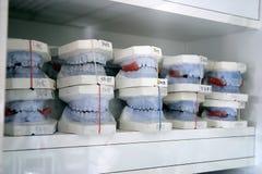 Molde de la dentadura Fotografía de archivo libre de regalías