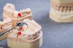 Molde de los dientes con el espejo de boca Imágenes de archivo libres de regalías